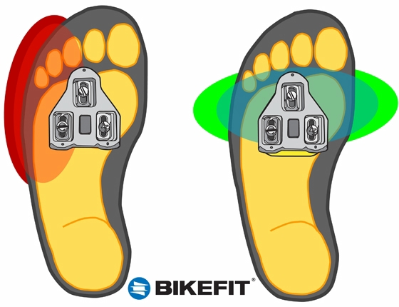 Cleat and Foot Tilt–A Cause of Cycling Foot Pain